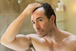 Researchers Find An Innovative Solution to Hair Loss